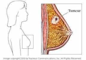 cancer sein tumeur lamascott